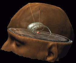 Stimulation intracérébrale contre les TOC. Ensemble du crâne avec les noyaux caudés et deux électrodes implantées dans les noyaux subthalamiques.